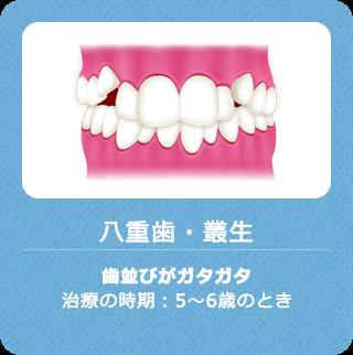 八重歯・叢生