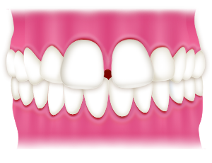 空隙歯列空隙歯列