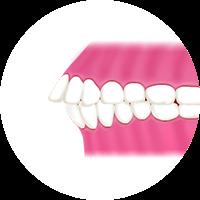 前歯が出ている (出っ歯)