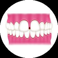 歯と歯の間に隙間がある (すきっ歯)