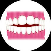 上下の前歯が噛み合わず<br />隙間ができる (開咬)