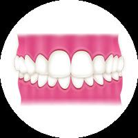 上の前歯が下の前歯に<br />深くかぶさっている (過蓋咬合)