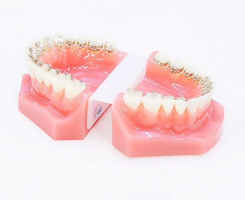歯の裏側にワイヤーをつける裏側矯正<br />(舌側矯正)